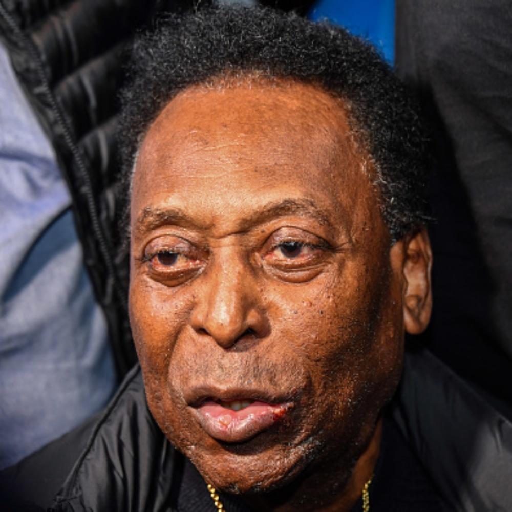 """Hospital atualiza estado de Pelé: """"Se recuperando de maneira satisfatória"""""""